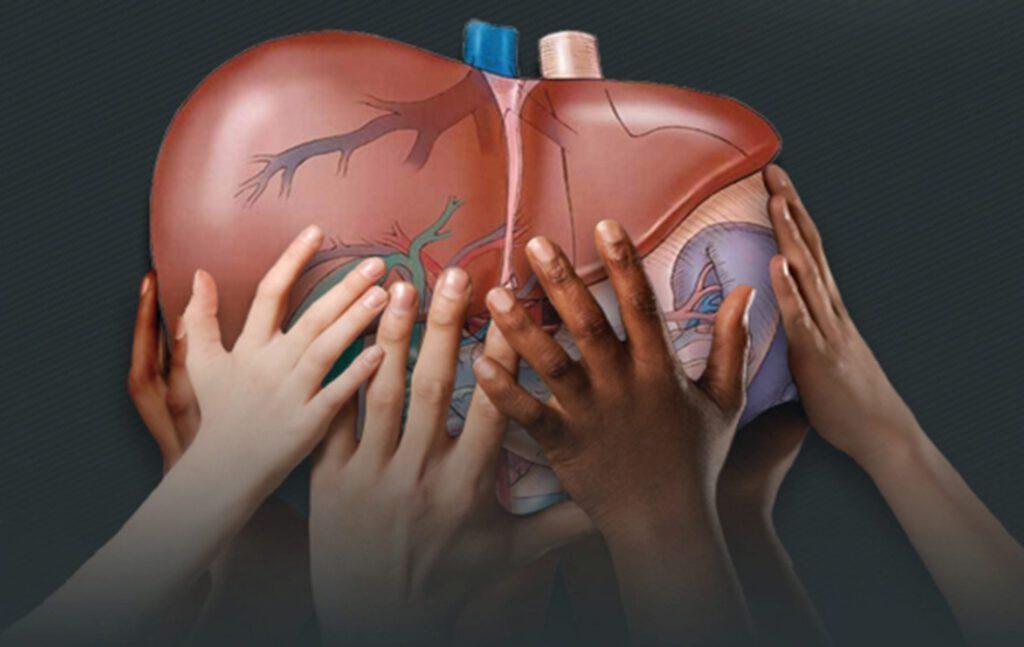 علائم بیماری های کبد و راهکار